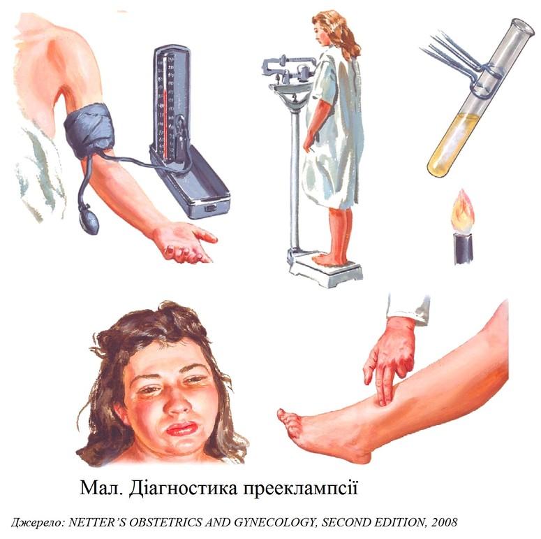 Поздний гестоз беременных симптомы 18